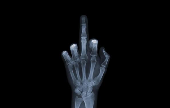 Picture FAK, Moderators, Middle finger