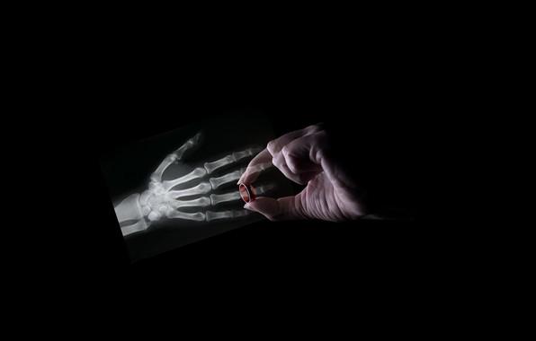 Picture hand, ring, bones